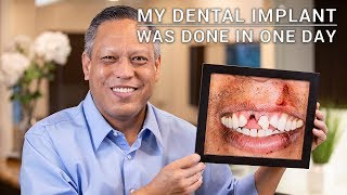 Derek's Story - Repairing my smile with implants after my accident