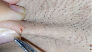 Longest ingrown hair removal below belly button,Ingrown Hairs