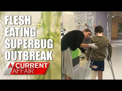 Flesh-Eating Superbug on the Rise | A Current Affair Australia