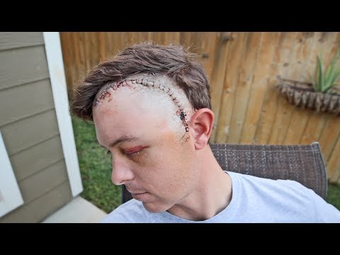 Revealing My Face After Brain Surgery (Graphic)