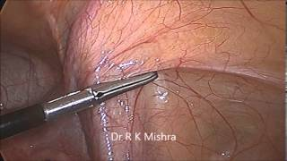 Laparoscopic Demonstration of Pelvic Anatomy