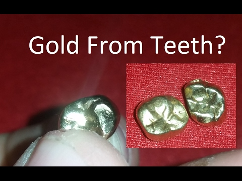 Precious Metal Refining & Recovery, Episode 17: Teeth
