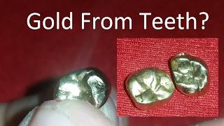 Precious Metal Refining & Recovery, Episode 17: Teeth