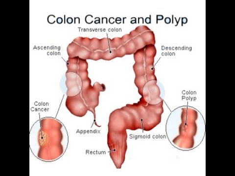 Colon Cancer Youtube
