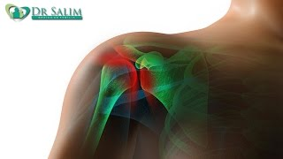 tratamento para dores no ombro por dr salim mdico de famlia 31 05 2016 2