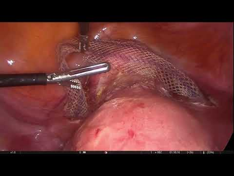 Laparoscopic sacrohysteropexy.