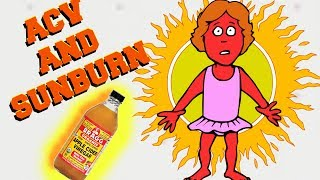 Sunburn Remedy| Apple Cider Vinegar