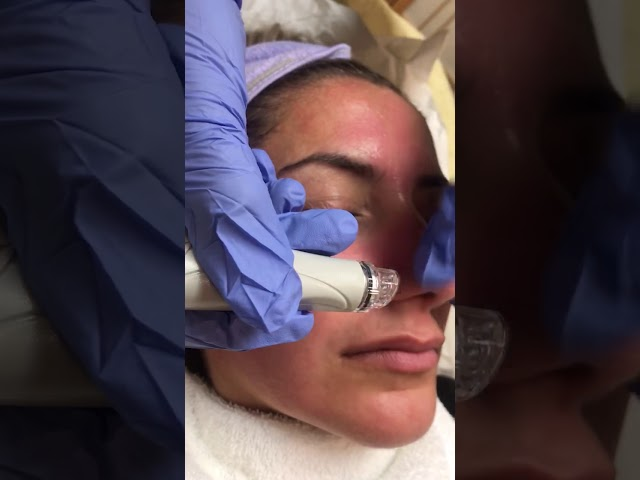 Cleanse, Exfoliate + Hydrate with a Hydrafacial MD!