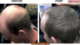 видео Редкие волосы - гуще реально!! Облысение
