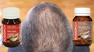 A HAIR GROWTH SUPPLEMENT THAT ACTUALLY WORKS!