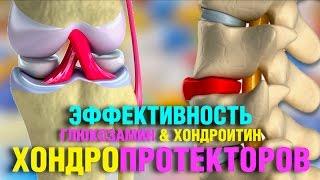 видео Американский препарат для суставов с глюкозамином