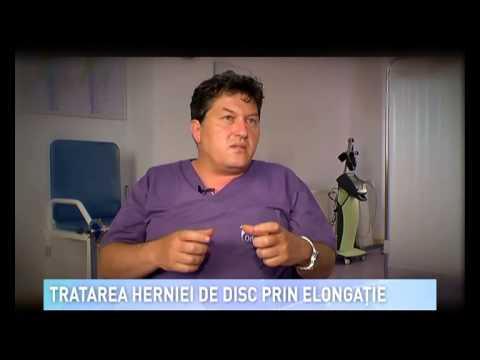 Tratarea herniei cervicale fara operatie