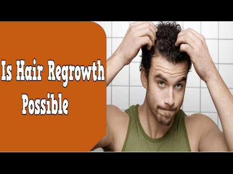Hair Regrowth Naturally Possible