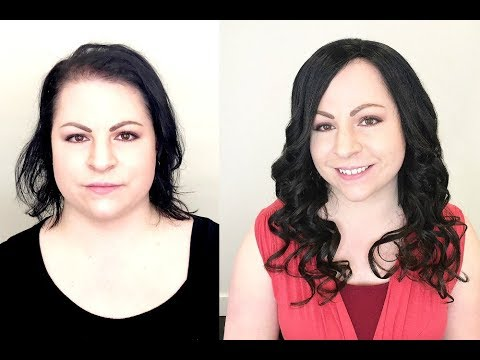 Undetectable women's lace hair piece non-surgical install at Pacific Hair
