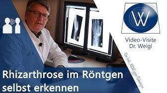 Fingerarthrose & Daumenarthrose im Röntgen selber erkennen🤓 Diagnostik & Radiologie Rhizarthrose