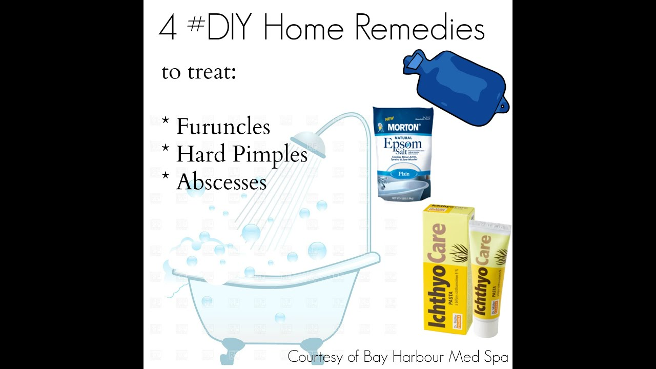 4 Home Remedies to Treat Furuncles, Abscesses and Hard Pimples - YouTube