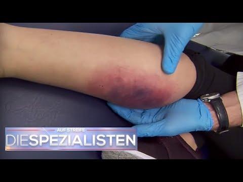 Stirbt Das Bein Ab? Mysteriöser Blauer Fleck Entdeckt! | Die Spezialisten | SAT.1 TV