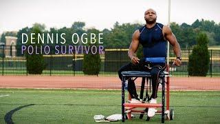 Polio Survivor Dennis Ogbe