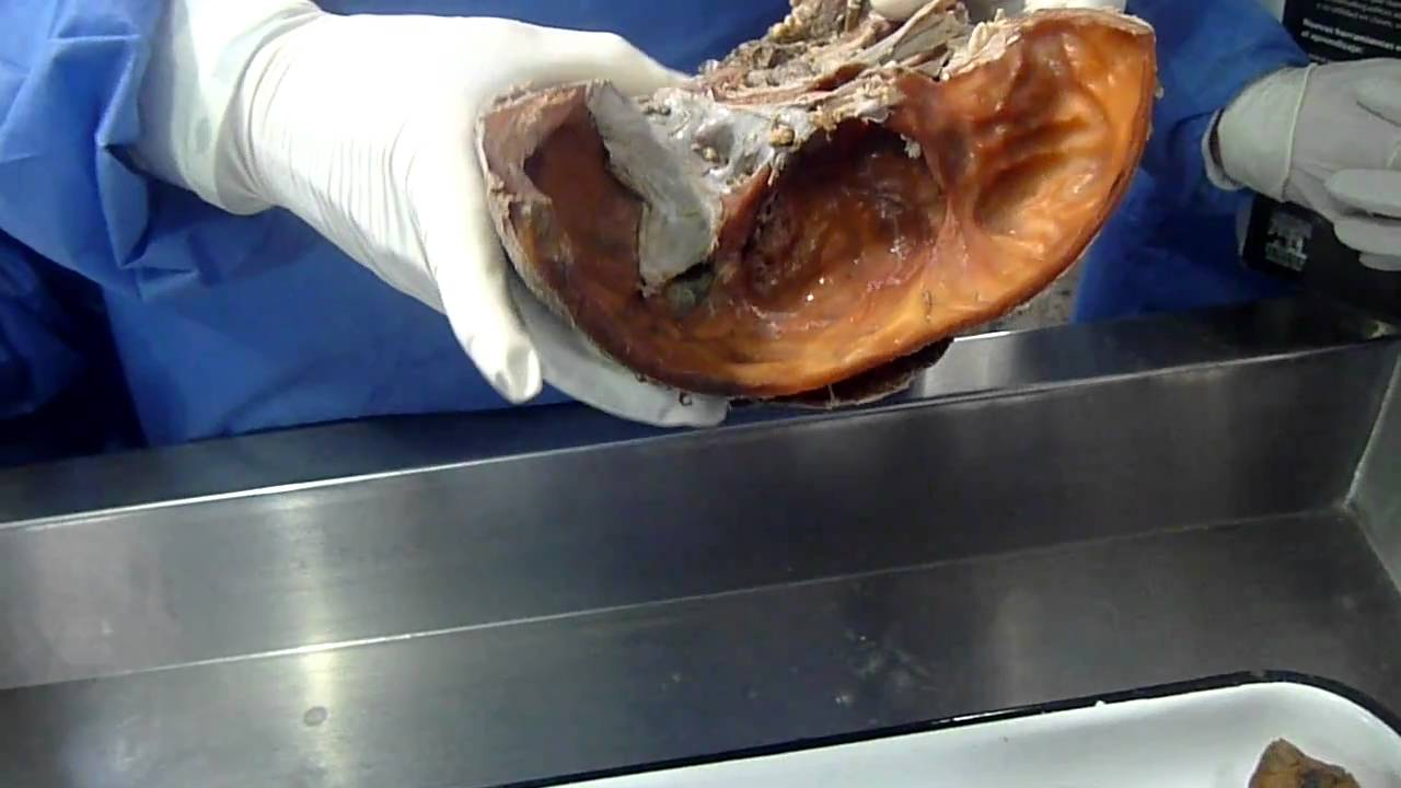 Video De Anatomia - Faringe - YouTube