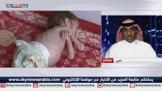 أطفال اليمن.. ضحايا الجوع والحرب والمرض