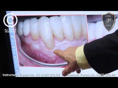 Chao Pinhole® Replaced Filling With Gum Tissue - Ignacio