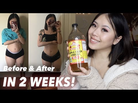 How I Lost 8Ibs In 2 Weeks Drinking Apple Cider Vinegar