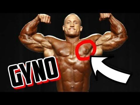 Do You Have GYNO and How To Fix It