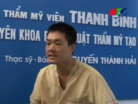 Phau thuat nang mui - Tham my vien Thanh Binh