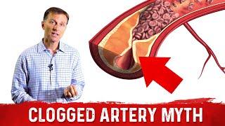 The Clogged Artery Myth