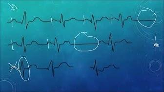 EKG Crashkurs, Teil 2: Sinusrhythmus, AV-Block, SA-Block
