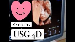 USG 4D Usia Kehamilan 6 bulan Janin sangat aktif JK Cowo