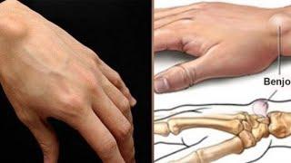 Cara mengatasi pergelangan tangan sakit banget ,siapa saja yg menderita sakit pergelangan tangan sak.