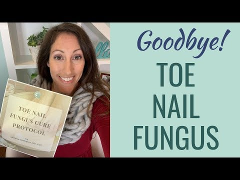 The Best Natural CURE for Toenail Fungus | Get Rid of Toenail Fungus FAST