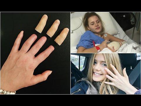 My Amputated Fingers + Prosthetics **WARNING GRAPHIC**
