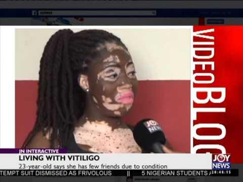 Living with Vitiligo - Joy News Interactive (29-9-15)