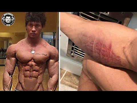 Aesthetic Bodybuilder Jon Skywalker Tears His Biceps