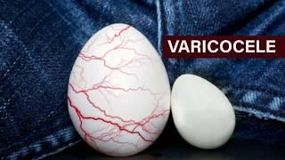 Fertilidade por varicocele sucesso de