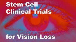 Eyeing Stem Cell Therapies for Vision Loss
