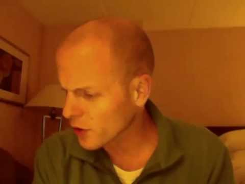 reddit balding dating