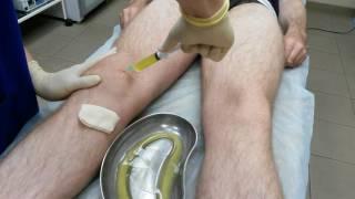 Лечение обострения артроза коленного сустава (синовит)