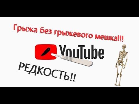 #Грыжа #белойлинии #живота #Операция.