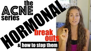 Hormonal Acne - Stop the Monthly Breakouts! The Acne Series