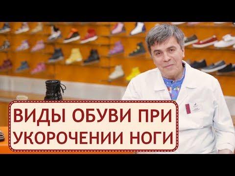 🚶 Компенсация укорочения нижних конечностей ортопедической обувью. Укорочение нижней конечности.12+