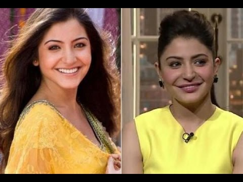 Anushka Sharma Before and After Plastic Surgery Photos