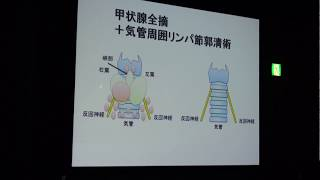 「甲状腺がんの手術について」岩舘学(福島医大)~市民公開講座(2)