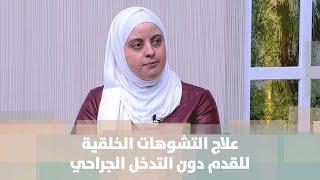 الدكتورة آلاء أبو حجلة - علاج التشوهات الخلقية للقدم دون التدخل الجراحي