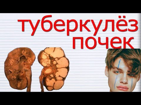 ТУБЕРКУЛЁЗ ПОЧКИ. Симптомы и Методы Лечения ПОЧЕК, Пораженных Туберкулёзом. Исследования СССР.