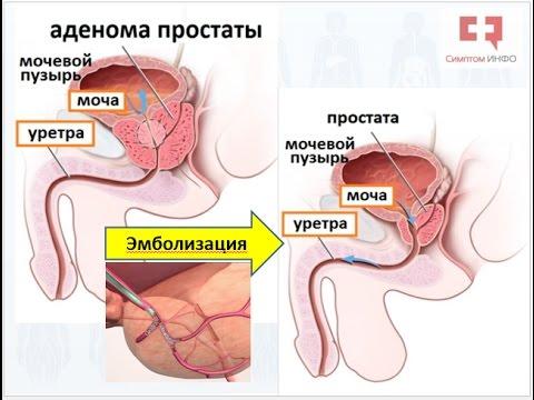 Гиперплазия простаты - lechenie-