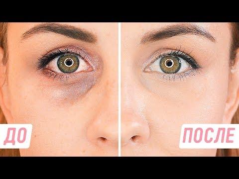 Темные круги перед глазами почему возникают и что означают