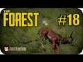 The Forest Let S Play FR Protection Contre Le Froid Part 18 mp3